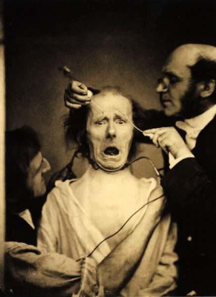 experiencia duchenne 001 10 Fotografias Cientificas e Bizarras do Século XIX