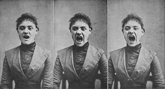 hysteria foto experiencia 002 10 Fotografias Cientificas e Bizarras do Século XIX